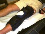 złamana noga